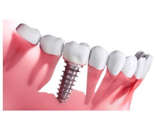 best dental implant clinic in kolkata - Perfect Smile Super Speciality Dental Clinic