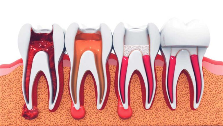 Root canal specialist in kolkata - Perfect Smile Super Speciality Dental Clinic
