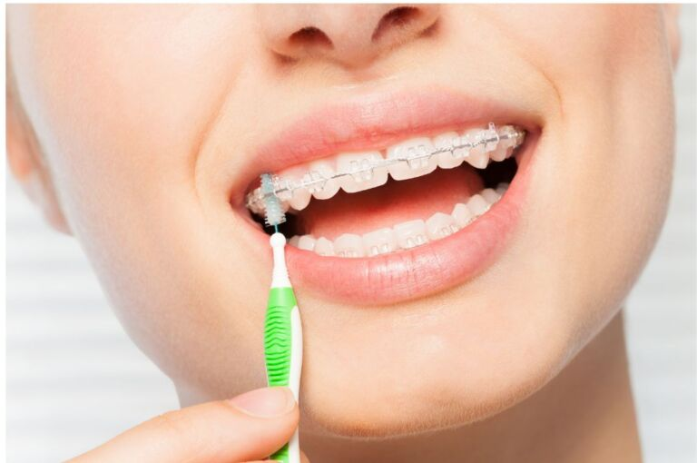 best orthodontist in kolkata - Perfect Smile Super Speciality Dental Clinic